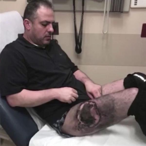 男子将电子烟放在裤袋中:电池爆炸腿被严重烧伤